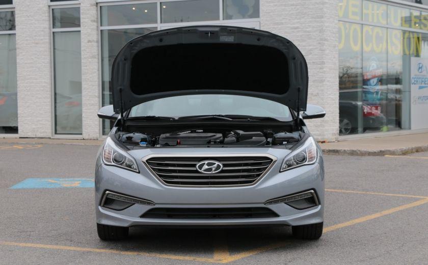 2016 Hyundai Sonata 2.4L GLS Special Edition #31